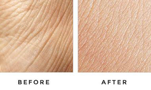 Before-And-After-Skin