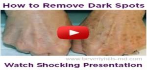 Beverly-Hills-MD-Dark-Spot-Corrector-Reviews
