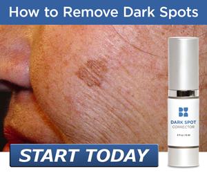 Best Face Cream - Beverly Hills MD Dark Spot Corrector